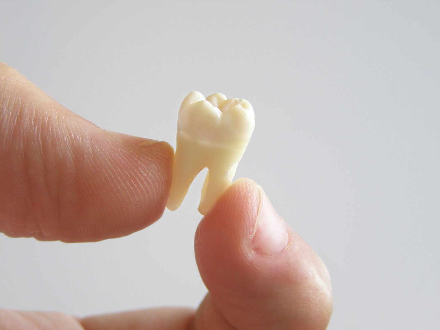 Tooth Extraction Dentist - Bel Air, MD
